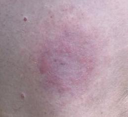 laimo liga, skausmas, neuropatija, borelijos - wall4ever.com